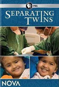 Separating Twins - (Region 1 Import DVD)